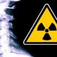 Radiology waiting times fall at NNUH